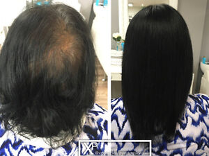 CALGARY HAIR EXTENSIONS FOR -Hair Loss&thinning Solution Calgary Alberta image 1