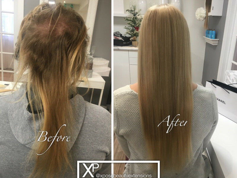Hair Loss Or Thinning Solution Calgary Hair Extensions Salon
