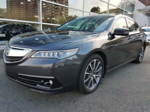 2015 Acura TLX SH-AWD Elite Package