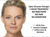 UPTO 10 YEARS YOUNGER IN 1 HOUR! NON SURGICAL FACELIFT!