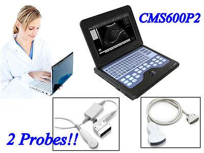 Digital Ultrasound Scanner Machine Diagnostic System 2 Probes Convexmicroconvex