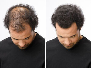 Proven Method to Thicken Your Hair. 100% Natural.