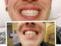 Teeth Whitening- 70% Off - Book With Us to Receive Real Results