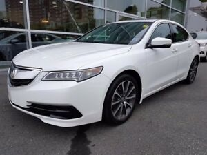 Acura TLX Technology Package 2015
