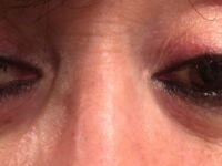 Permanent Makeup Montreal, Forget about Micro-blading!