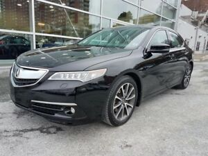 2015 Acura TLX Elite Package