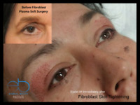 Fibroblast Skin Tightening Plasma Lift Course
