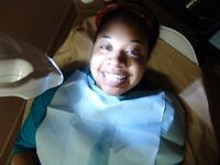 """Laser Teeth Whitening """"Special"""" Professional & Safe In Chair-Tee"""