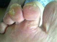 Foot Care, Callous, Corns, Ingrown, Fungal nails, Footcare Nurse