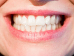 Your Friendly Neighbourhood Dental Clinic in Toronto – QQ Dental