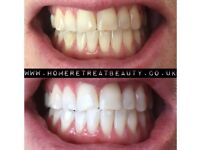 LASER TEETH WHITENING, GUARANTEED RESULTS, 10-16 SHADES LIGHTER IN ONLY 1 TREATMENT.