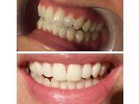 mobile teeth whitening technician