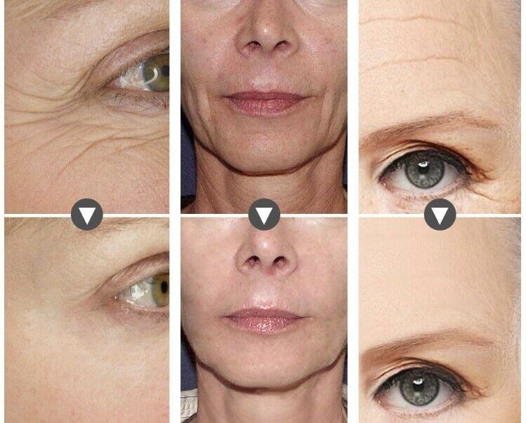 Hyaluronic Acid + Matrixyl 3000 Peptide SERUM ,Face Eye Anti