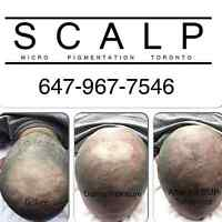 Scalp Micropigmentation: Hair Loss Solution for Men and Women