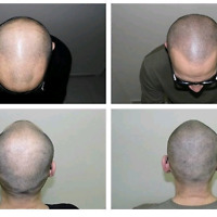 We Beat Any Price scalp hair Micro-Pigmentation tattoo.