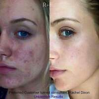Rodan and Fields skin care line