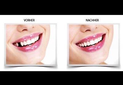Provisorischer Zahnersatz Zahnprothese     auch für gebrochene Zähne Füllung™️