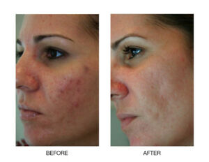 Microneedling  acne scar removing $175 reg $375