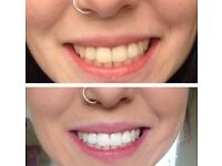 Professional Hollywood teeth whitening