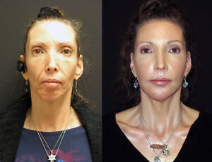 Cosmetic Injection Training Botox and Dermal Filler London Ontario image 8