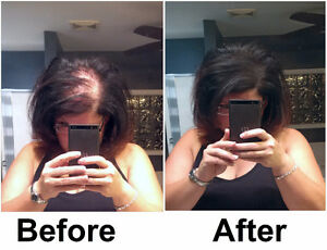 We Have A Solution For Your HairLoss Problems. Try it Now. Belleville Belleville Area image 5