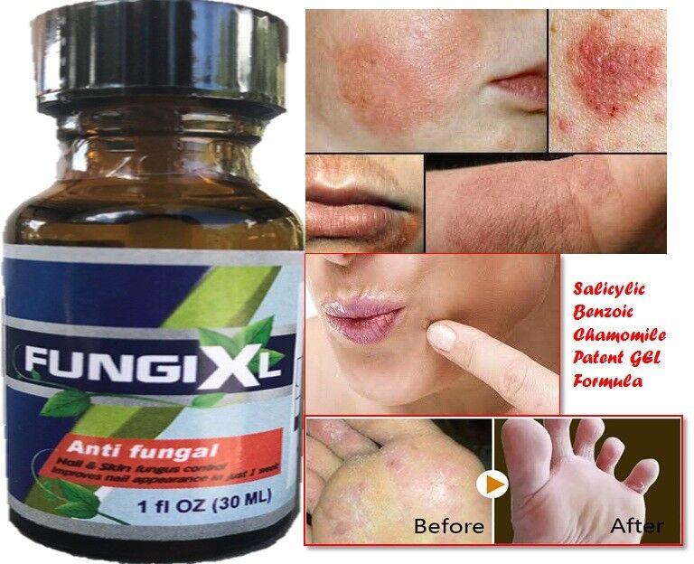 Athlete's Foot Antifungal Cream Treatment Jock Itch Ringworm Itching Anti Fungus 2
