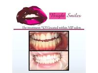 LED Teeth Whitening by Dental Professional