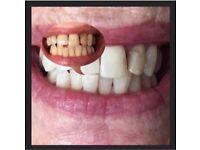 Laser Teeth Whitening £50