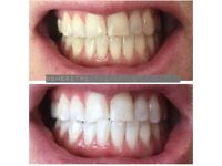 LASER TEETH WHITENING DERBY £70 PP OR £100 FOR 2 PEOPLE