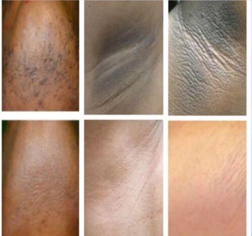 Быстро отбелить кожу в интимных местах в домашних условиях
