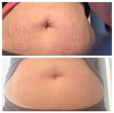 Wow Stretch mark scar remover and blemish free cream fast activating acne gone Stretch Mark Removal