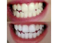 Brilliant Teeth Whitening Toothepaste