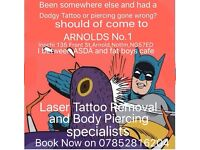 Laser tattoo removal and piercings offer