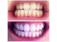 the famous whitening toothpaste