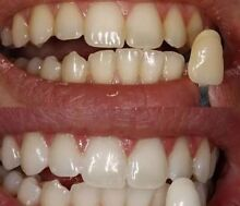 Professional Teeth whitening bleach x 10 Mona Vale Pittwater Area Preview