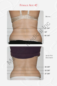 """BLACK FRIDAY SALE"" SKIN TIGHTENING $ 70 COMPARE TO $150 Oakville / Halton Region Toronto (GTA) image 3"