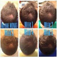 Hair Loss? Damaged? Regrowth?
