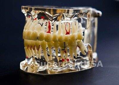 Implant Models Dental Demostration Models Pathology Model Study Teach Model