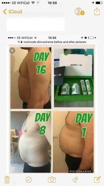 Weight loss surgery nanaimo