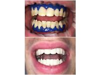 1 hour professional laser teeth brightening