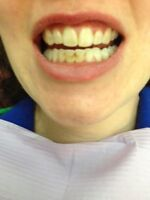 ALL SMILES Dental Hygiene Clinic