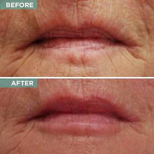 Rejuvenate Dehydrated, Wrinkly Skin! SAVE $370! Noosa Heads Noosa Area Preview