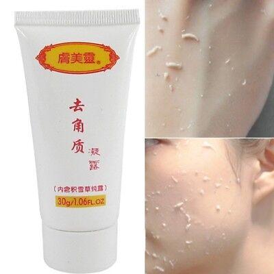 Exfoliating Gel Facial Exfoliators Cream Deep Cleansing Scrub Body Dead -