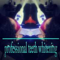 Whiten your Teeth for your Wedding - *Mobile Service*