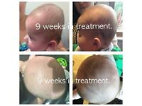 Plagiocephaly, Brachycephaly, Flat Head Syndrome Helmet Treatment for Babies with a Mis-shaped Head