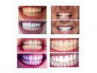 Fluoride Whitening Toothpaste