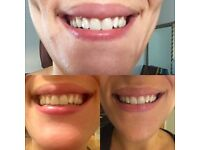 Beautiful White Teeth for £10