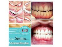 Mobile Spray tanning & laser non peroxide teeth whitening