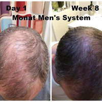 Hair regrowth treatment system