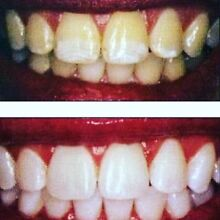 """Professional teeth whitening """"gumtree offer only"""" $69 pp Benowa Gold Coast City Preview"""